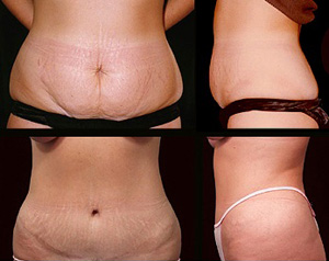 abdominoplasty photo 3