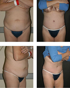 abdominoplasty photo 2
