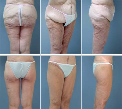 Thigh Lift Brookside Plastic Cosmetic Reconstructive Surgery Center