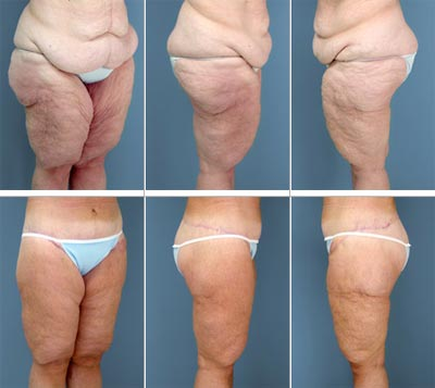 colonics weight loss average stop